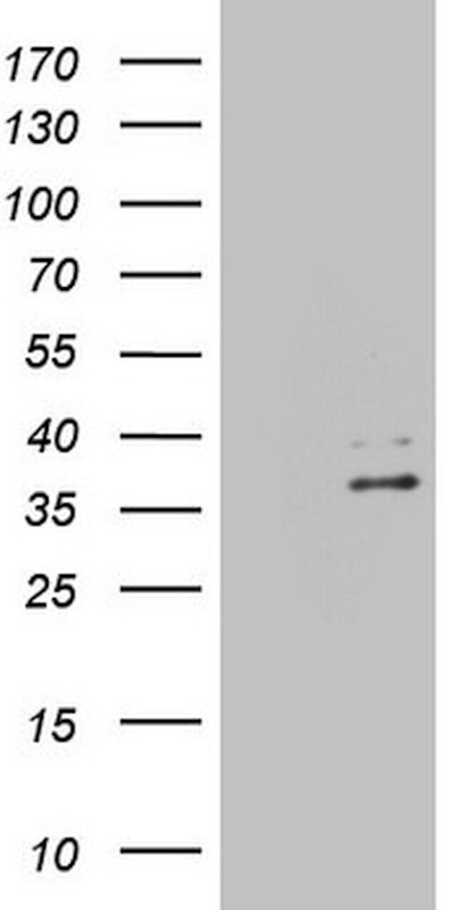 EBLN2 Mouse anti-Human, Clone: OTI1B5, lyophilized, TrueMAB  100 µg;