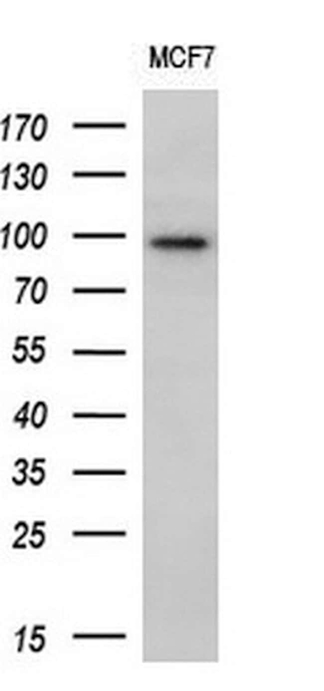ECT2 Mouse anti-Human, Clone: OTI2D9, lyophilized, TrueMAB  100 µg;