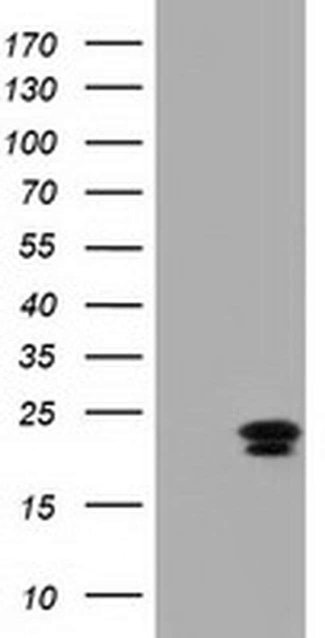 EFNA2 Mouse anti-Human, Clone: OTI2D6, liquid, TrueMAB  100 µL; Unconjugated