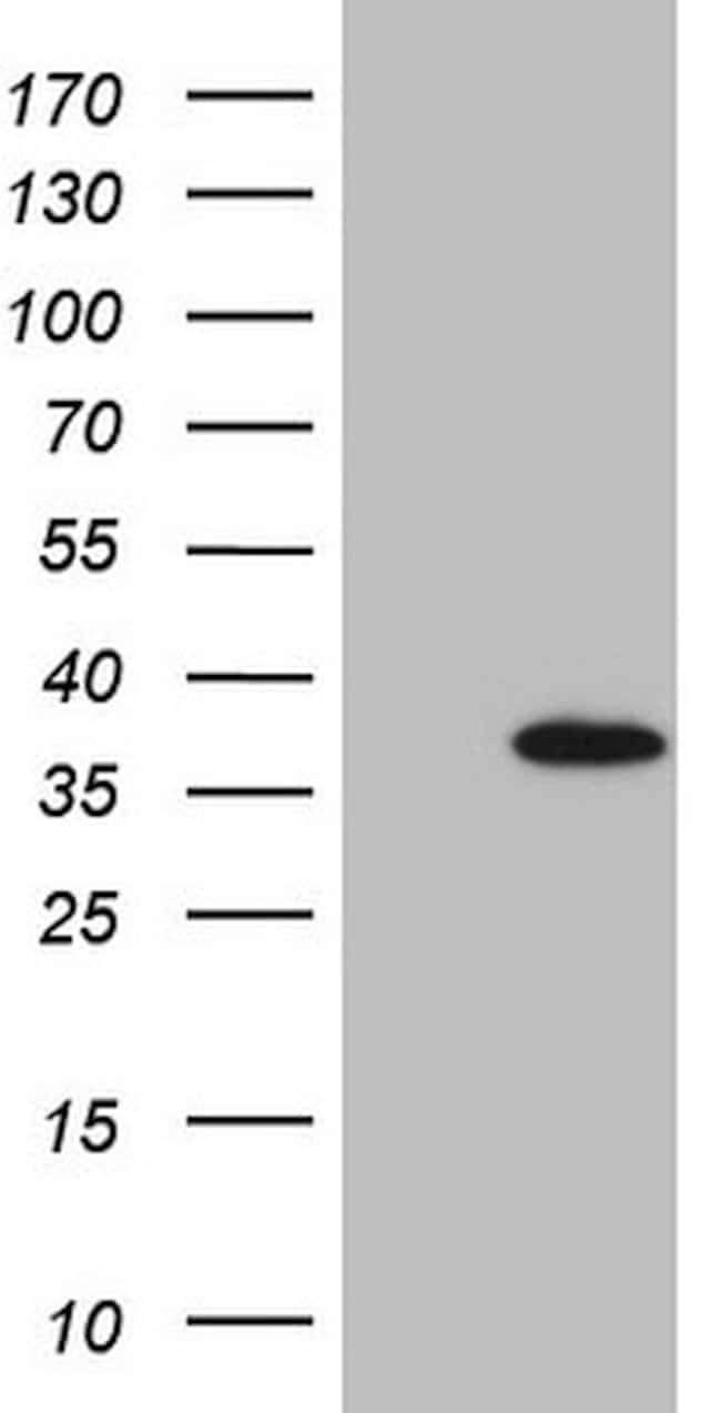 EGFL7 Mouse anti-Human, Clone: OTI4A5, lyophilized, TrueMAB  100 µg;