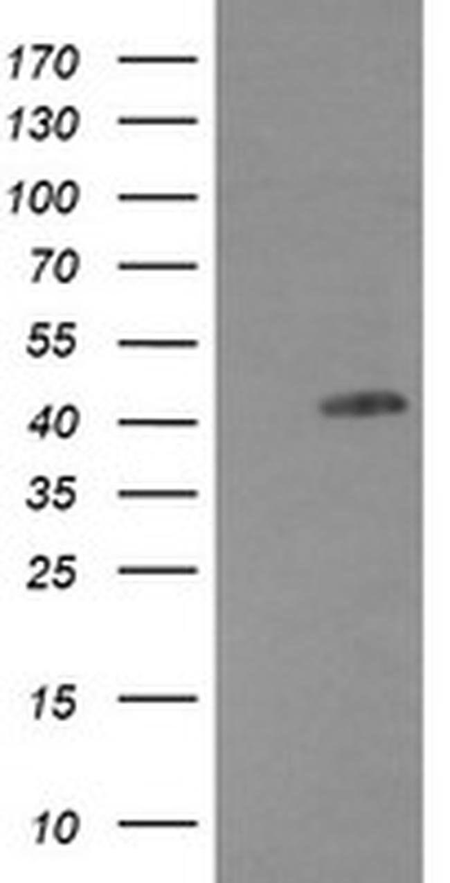 EGFR Mouse anti-Human, Clone: OTI2G8, liquid, TrueMAB  100 µL; Unconjugated