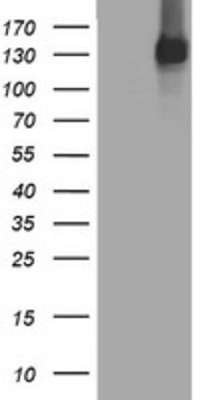 EGFR Mouse anti-Human, Clone: OTI1C8, lyophilized, TrueMAB  100 µg;
