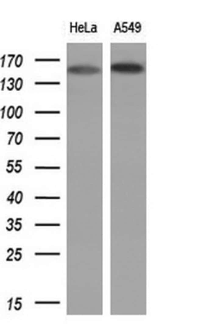 EGFR Mouse anti-Human, Clone: OTI1A3, lyophilized, TrueMAB  100 µg;