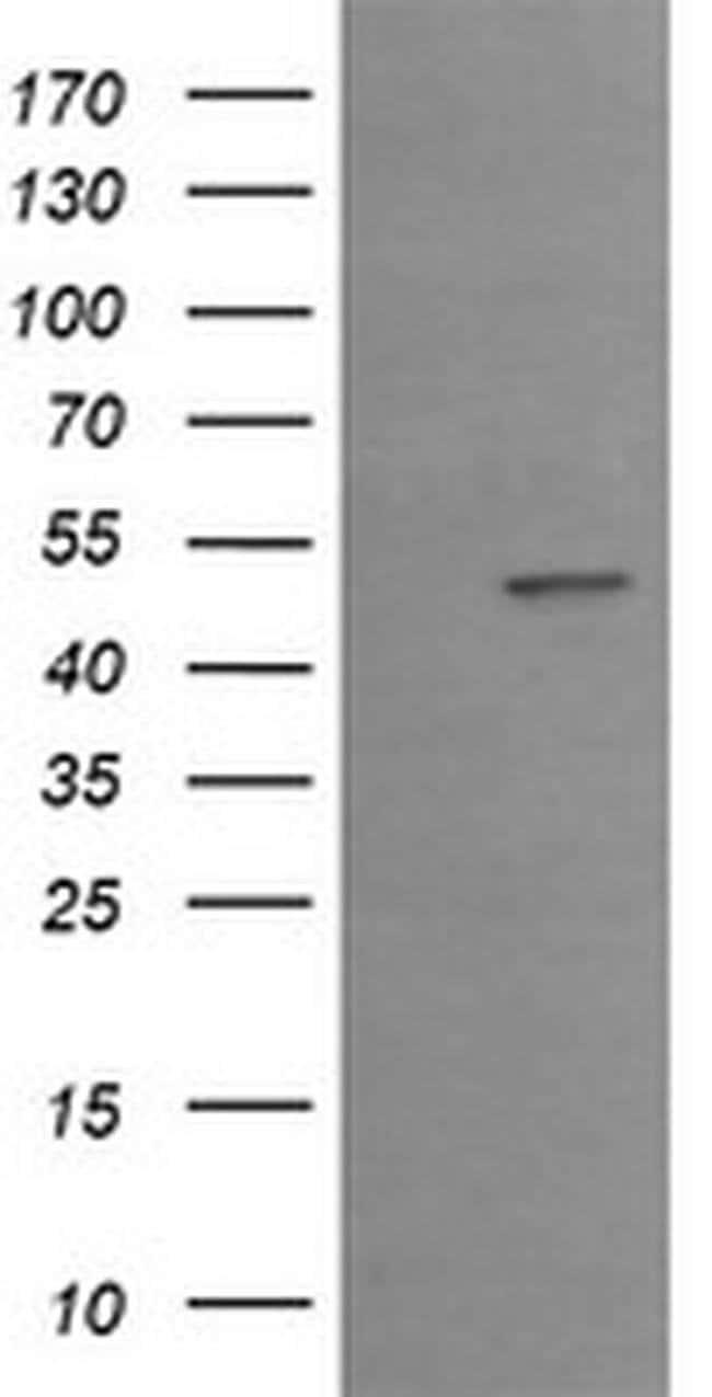 EGR2 Mouse anti-Human, Clone: OTI1B12, liquid, TrueMAB  100 µL; Unconjugated