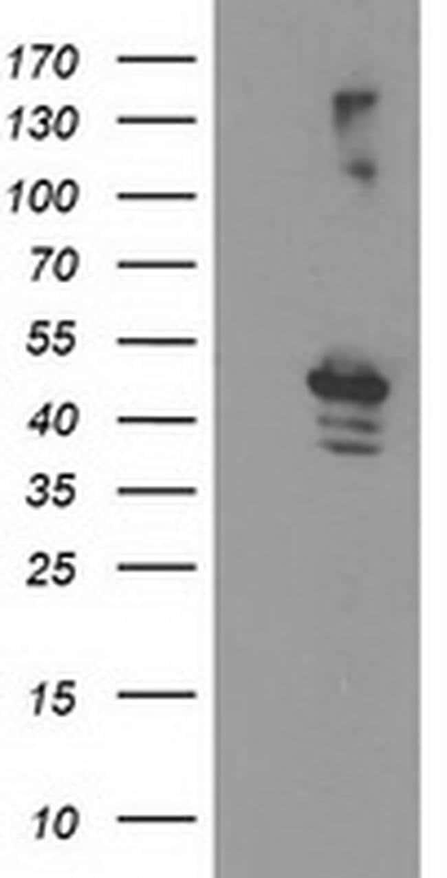 EIF2B3 Mouse anti-Human, Clone: OTI2H1, liquid, TrueMAB  100 µL; Unconjugated