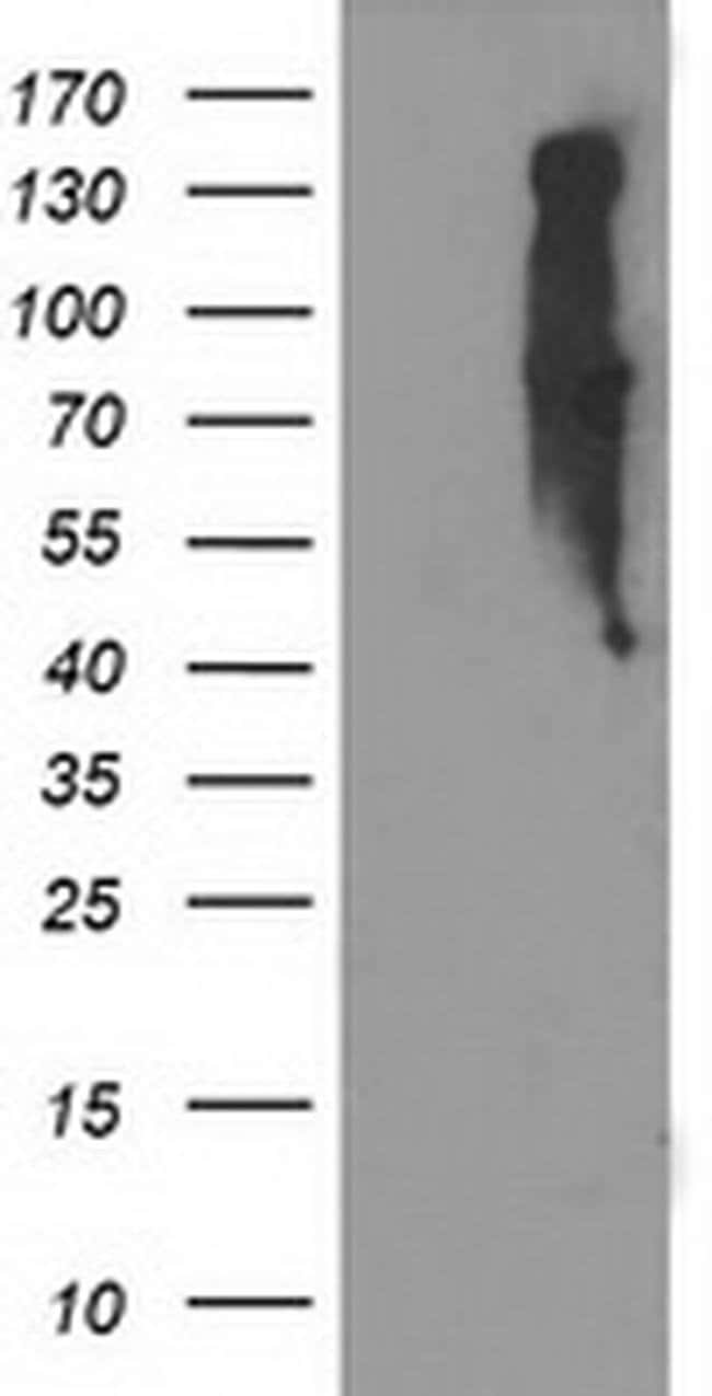 EIF2B3 Mouse anti-Human, Clone: OTI2D2, liquid, TrueMAB  100 µL; Unconjugated