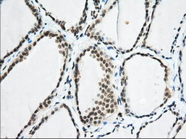 EIF2S1 Mouse anti-Human, Clone: OTI5D10, liquid, TrueMAB  100 µL;