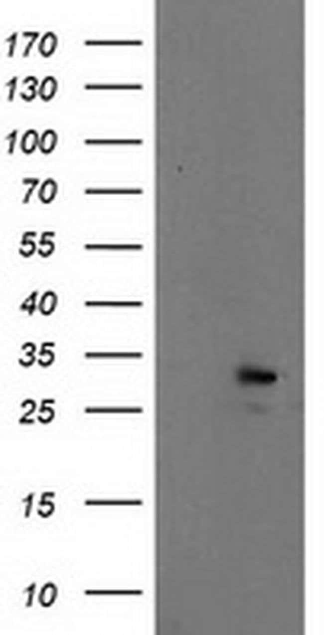 EIF4E Mouse anti-Human, Clone: OTI6C3, liquid, TrueMAB  100 µL; Unconjugated