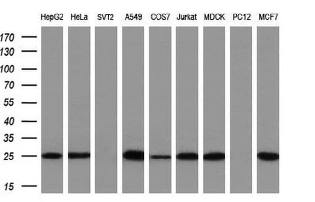 EIF4E Mouse anti-Human, Clone: OTI9H1, liquid, TrueMAB  100 µL; Unconjugated