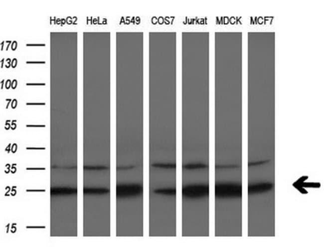 EIF4E Mouse anti-Human, Clone: OTI5D11, liquid, TrueMAB  100 µL; Unconjugated