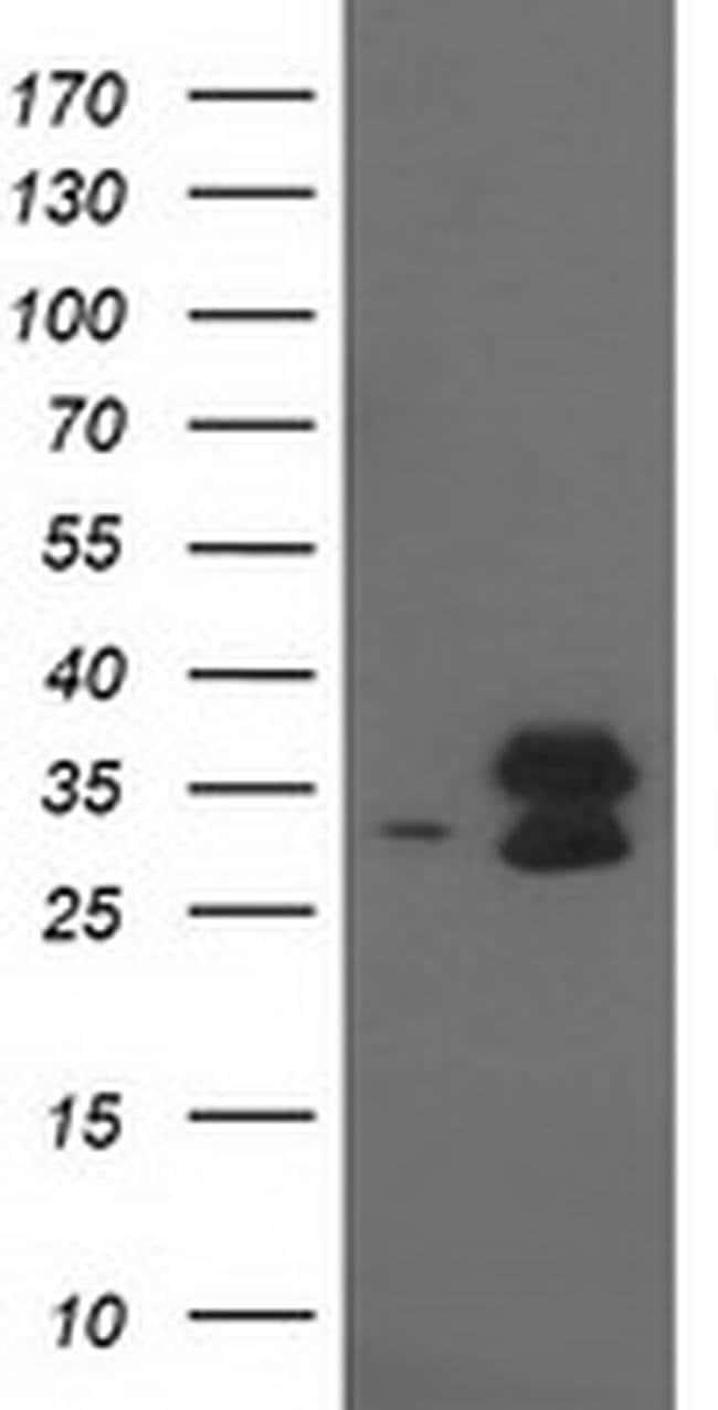EIF4E2 Mouse anti-Human, Clone: OTI1F11, liquid, TrueMAB  100 µL;