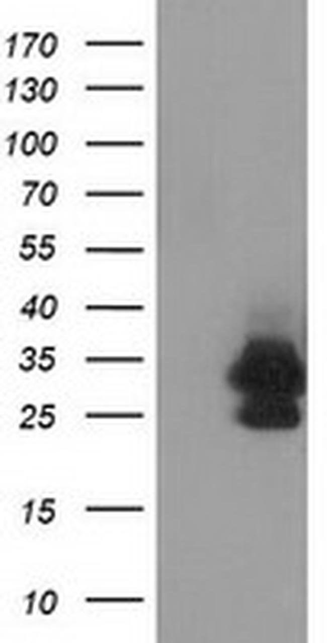 EIF4E2 Mouse anti-Human, Clone: OTI1F2, liquid, TrueMAB  100 µL; Unconjugated