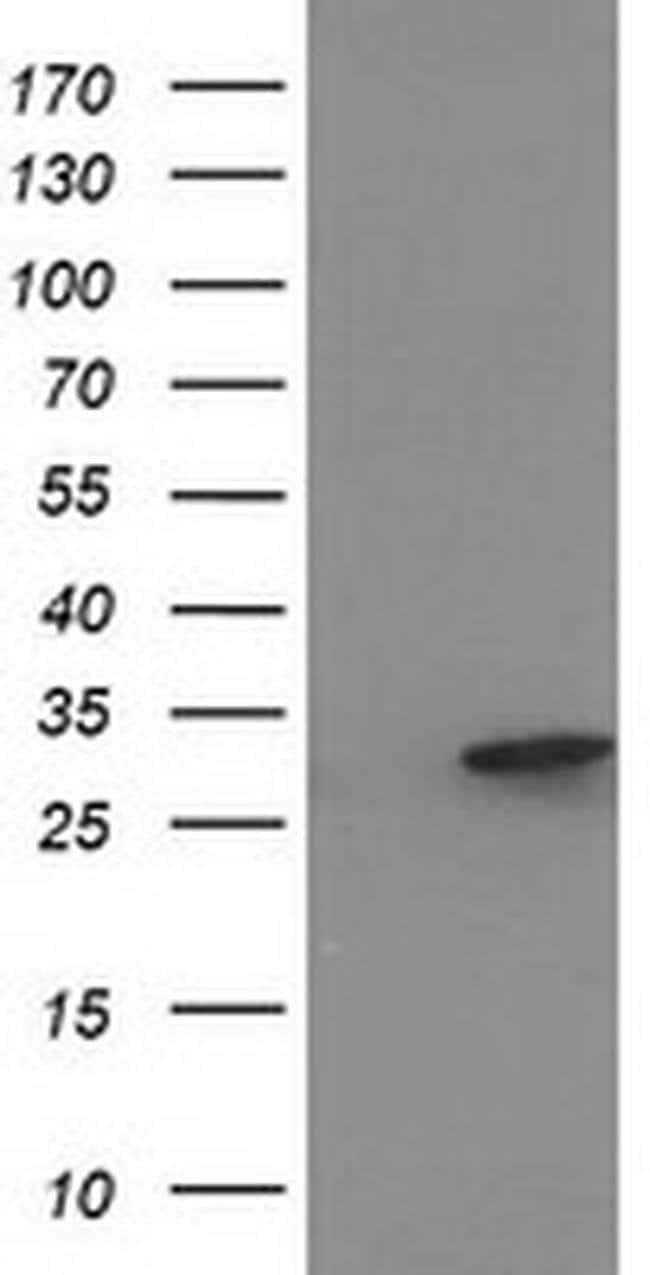 EIF4E2 Mouse anti-Human, Clone: OTI5D11, liquid, TrueMAB  100 µL;