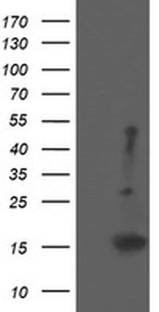 EIF5A2 Mouse anti-Human, Clone: OTI6F7, liquid, TrueMAB  100 µL; Unconjugated