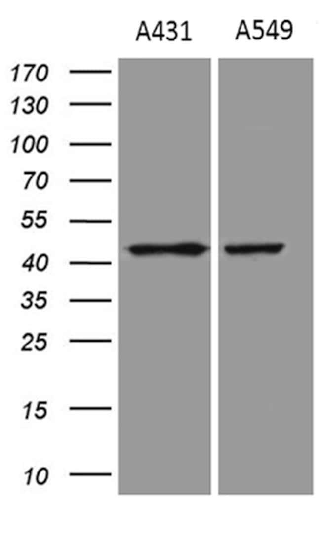 ELF3 Mouse anti-Human, Clone: OTI9H7, lyophilized, TrueMAB  100 µg;