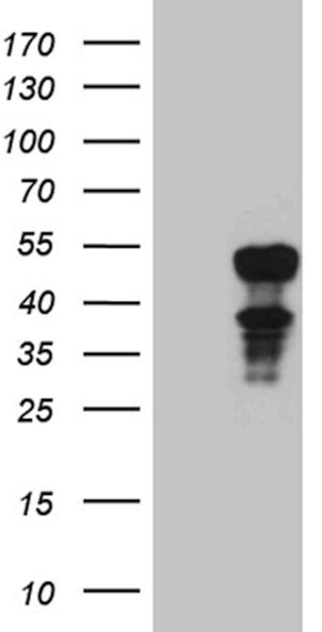ELF3 Mouse anti-Human, Clone: OTI2G6, lyophilized, TrueMAB  100 µg;
