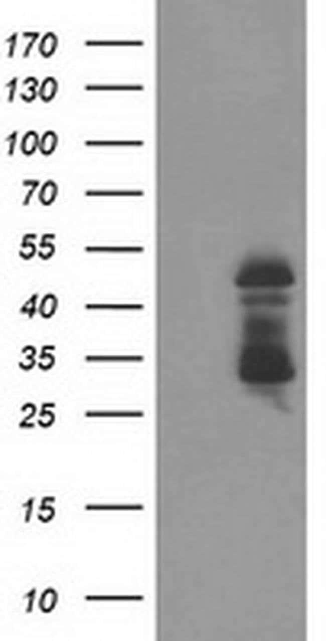 ELK3 Mouse anti-Human, Clone: OTI2C10, liquid, TrueMAB  100 µL; Unconjugated
