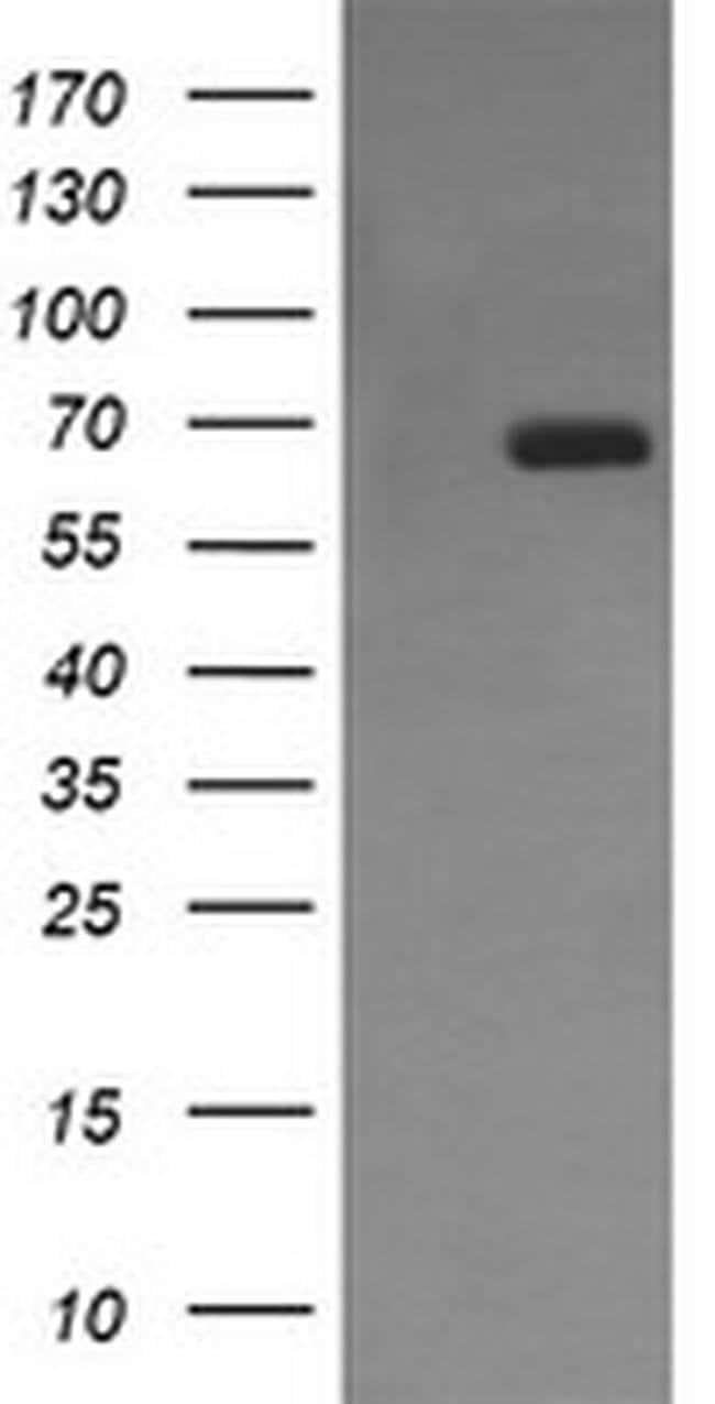 ENG Mouse anti-Human, Clone: OTI6G8, liquid, TrueMAB  100 µL; Unconjugated