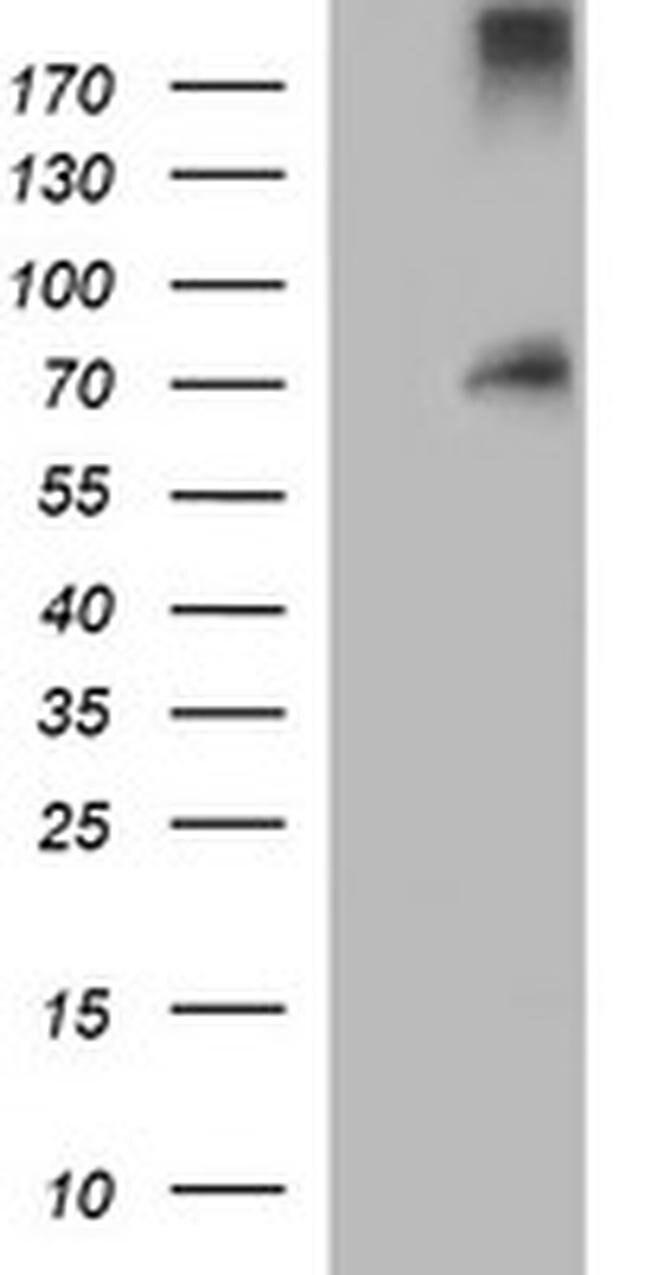 ENG Mouse anti-Human, Clone: OTI8B8, liquid, TrueMAB  100 µL; Unconjugated