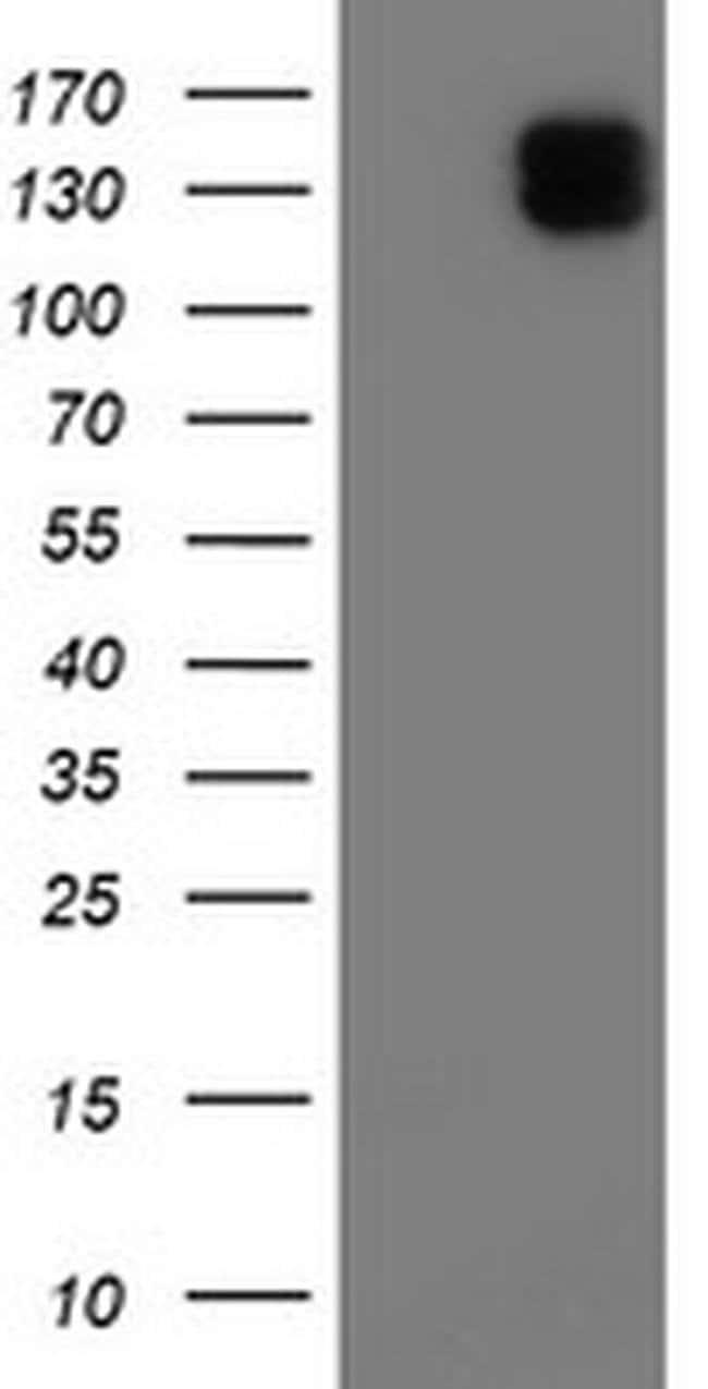 ENPEP Mouse anti-Human, Clone: OTI1D1, liquid, TrueMAB  100 µL; Unconjugated