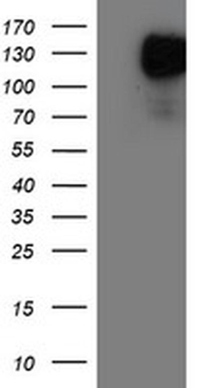 ENPEP Mouse anti-Human, Clone: OTI1D6, liquid, TrueMAB  100 µL; Unconjugated