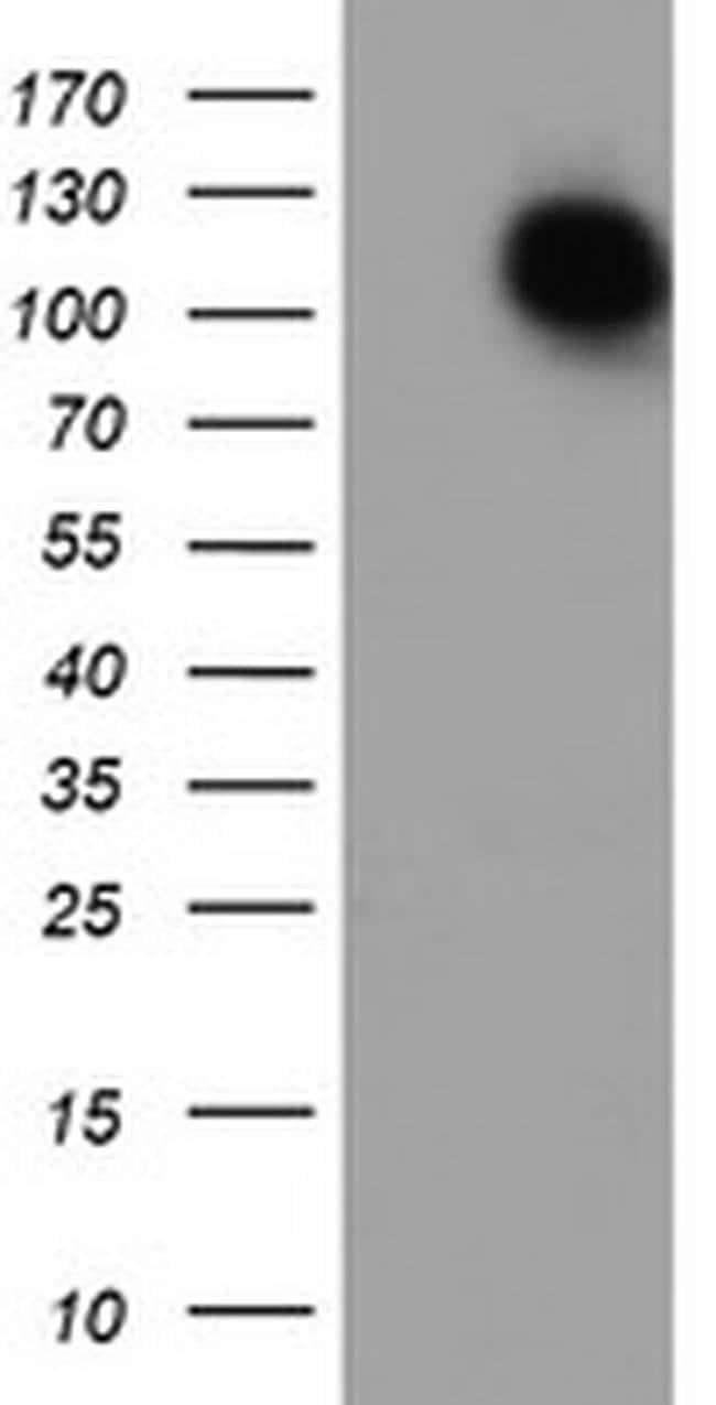ENPEP Mouse anti-Human, Clone: OTI1C4, liquid, TrueMAB  100 µL; Unconjugated