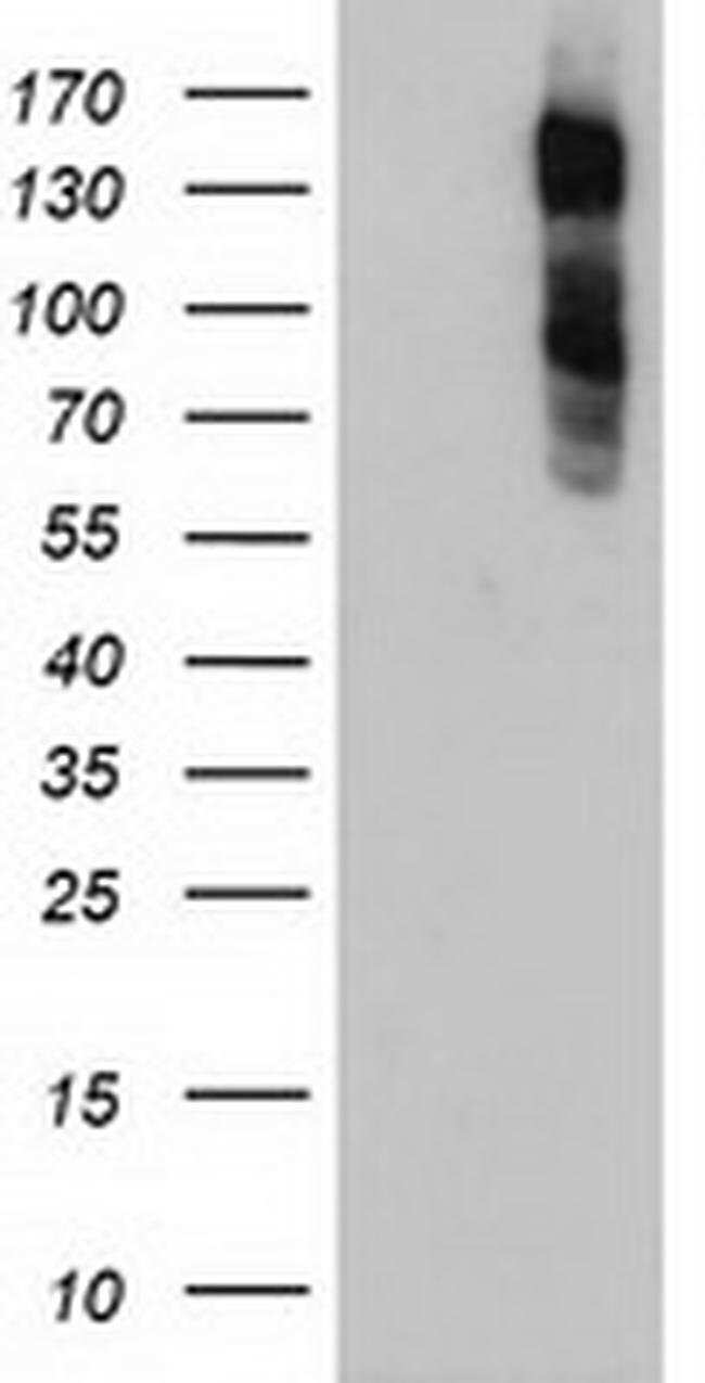 ENPEP Mouse anti-Human, Clone: OTI3G1, liquid, TrueMAB  100 µL; Unconjugated