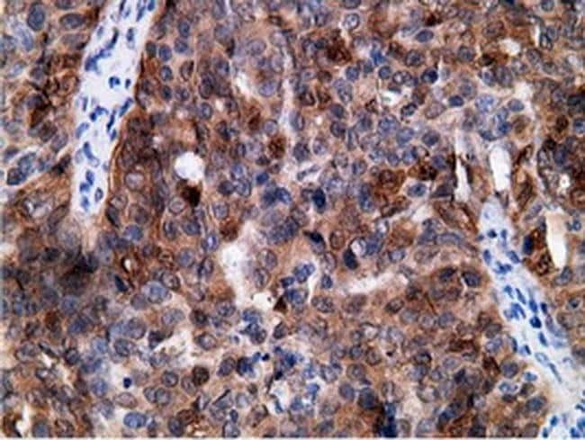 EPHX2 Mouse anti-Human, Clone: OTI1H5, liquid, TrueMAB  30 µL; Unconjugated