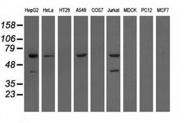EPHX2 Mouse anti-Human, Clone: OTI1A6, liquid, TrueMAB  100 µL; Unconjugated