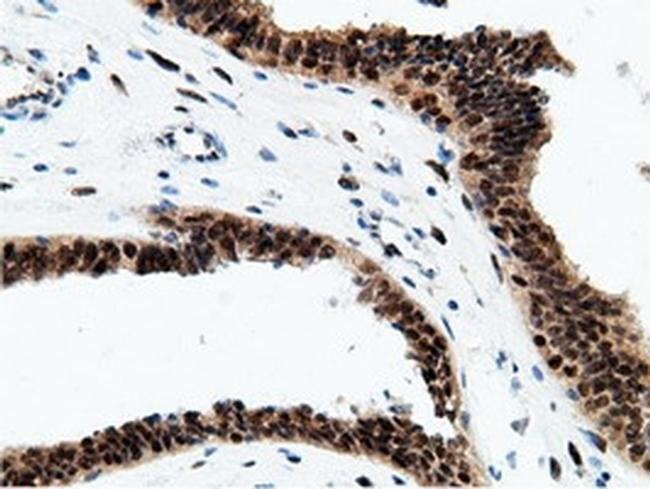 EPM2AIP1 Mouse anti-Human, Clone: OTI2G3, liquid, TrueMAB  100 µL;