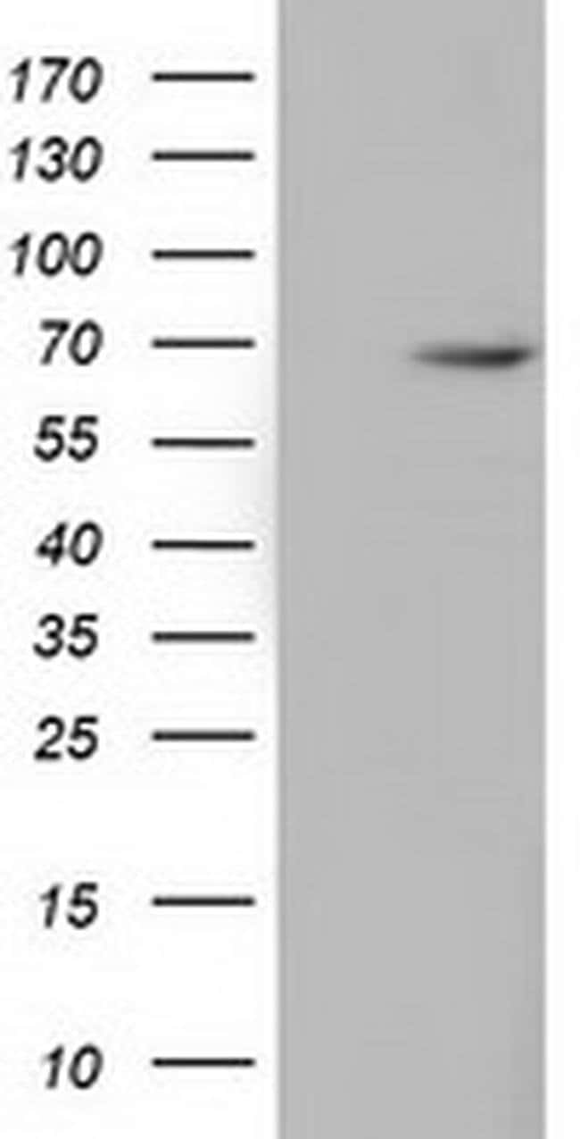 EPM2AIP1 Mouse anti-Human, Rat, Clone: OTI5G8, liquid, TrueMAB  100 µL;