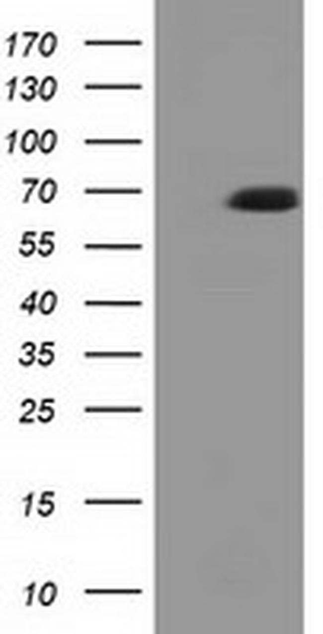 EPM2AIP1 Mouse anti-Human, Clone: OTI1D11, liquid, TrueMAB  100 µL;