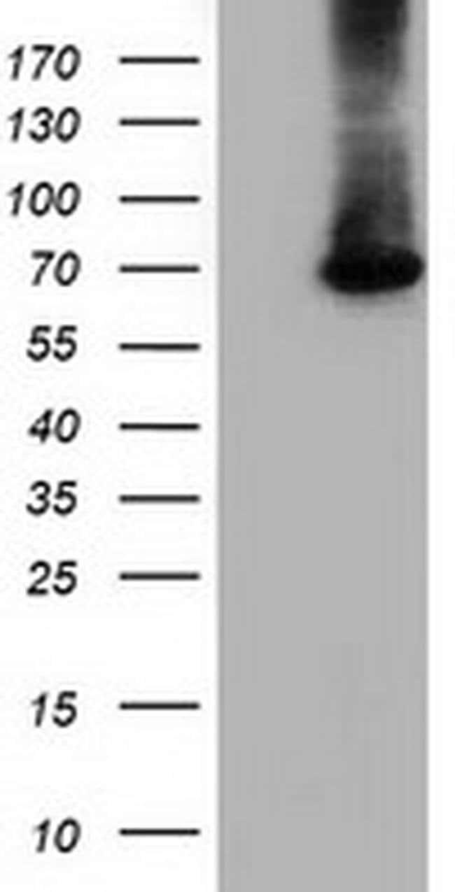 EPM2AIP1 Mouse anti-Human, Clone: OTI1F11, liquid, TrueMAB  100 µL;