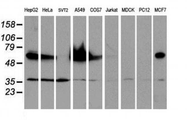 EPN2 Mouse anti-Human, Clone: OTI1G3, liquid, TrueMAB  100 µL; Unconjugated