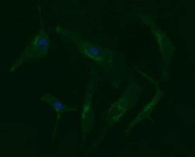ERBB2 Mouse anti-Human, Clone: OTI4F6, liquid, TrueMAB  100 µL; Unconjugated