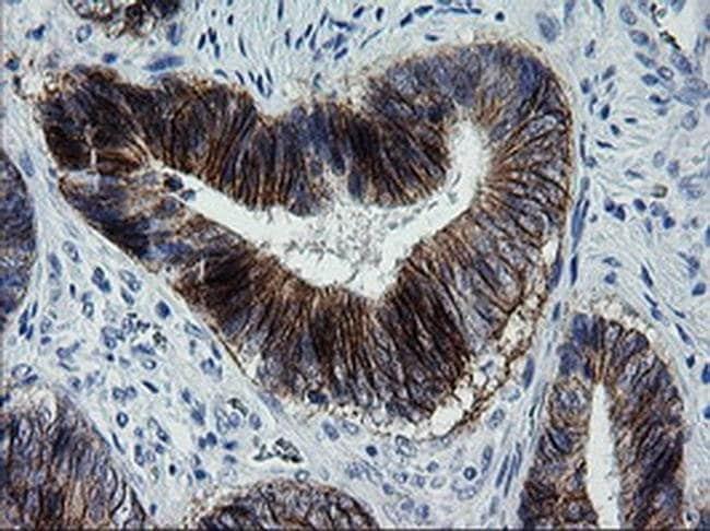 ERBB2 Mouse anti-Human, Clone: OTI5C4, liquid, TrueMAB  100 µL; Unconjugated