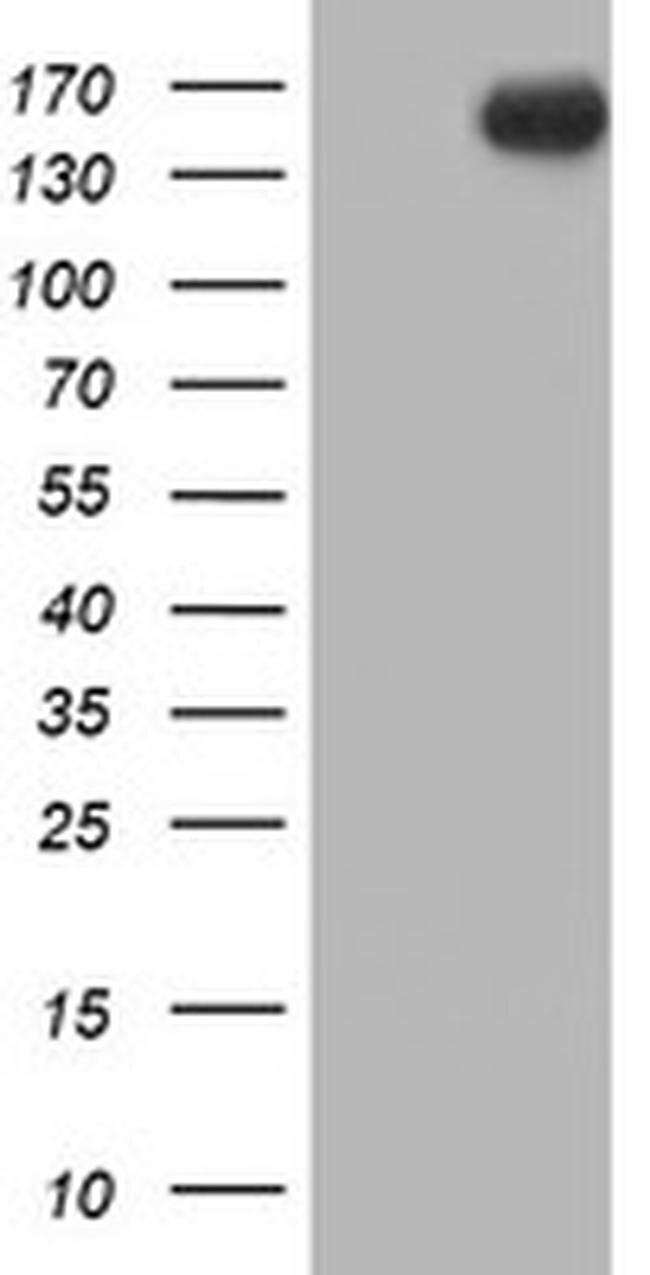 ERBB2 Mouse anti-Human, Clone: OTI4F10, liquid, TrueMAB  100 µL; Unconjugated