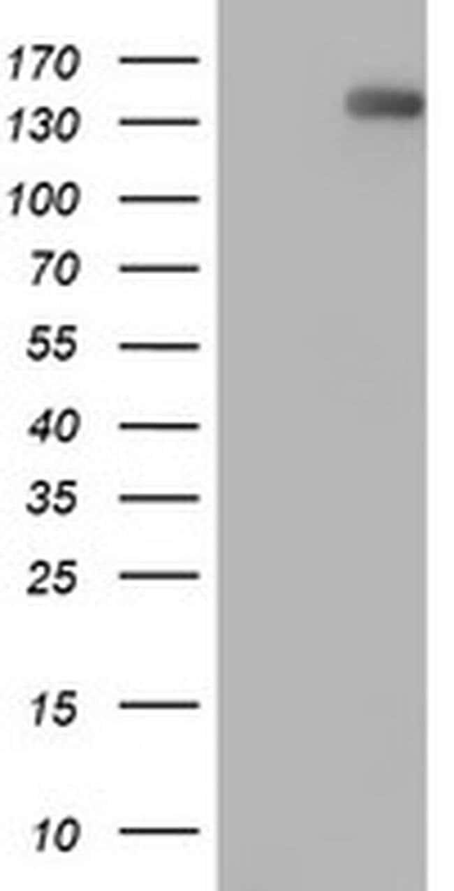 ERBB2 Mouse anti-Human, Clone: OTI9G2, liquid, TrueMAB  100 µL; Unconjugated