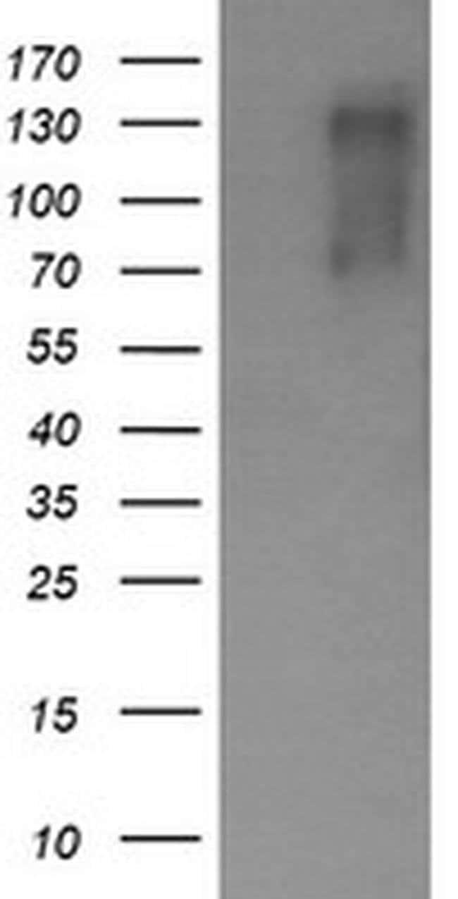 ERBB2 Mouse anti-Human, Clone: OTI6H10, liquid, TrueMAB  100 µL; Unconjugated