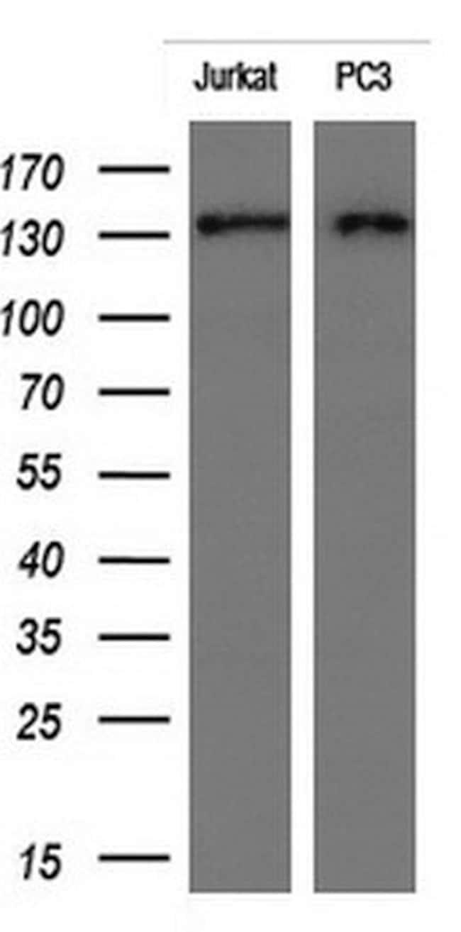 ERBB2 Mouse anti-Human, Clone: OTI6F3, liquid, TrueMAB  100 µL; Unconjugated