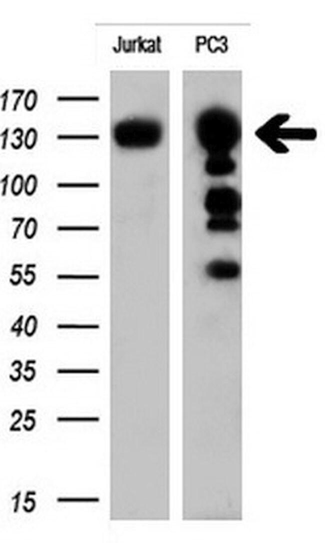 ERBB2 Mouse anti-Human, Clone: OTI4G7, liquid, TrueMAB  100 µL; Unconjugated