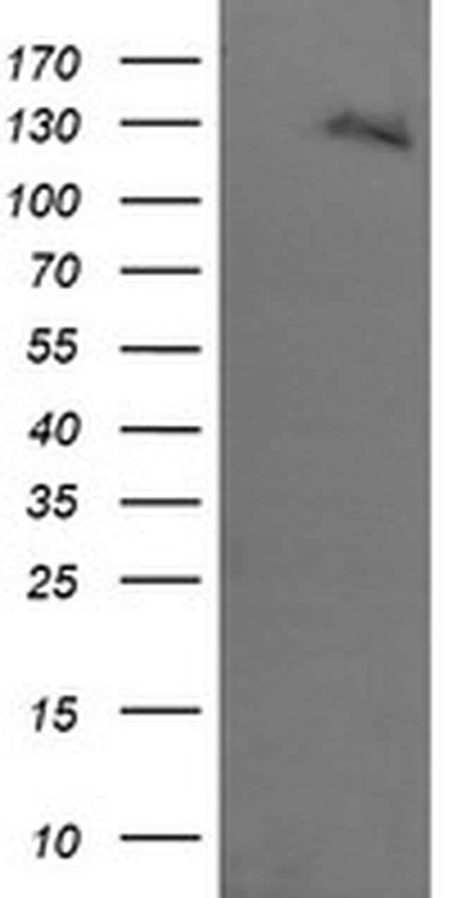 ERBB2 Mouse anti-Human, Clone: OTI2A1, liquid, TrueMAB  100 µL; Unconjugated