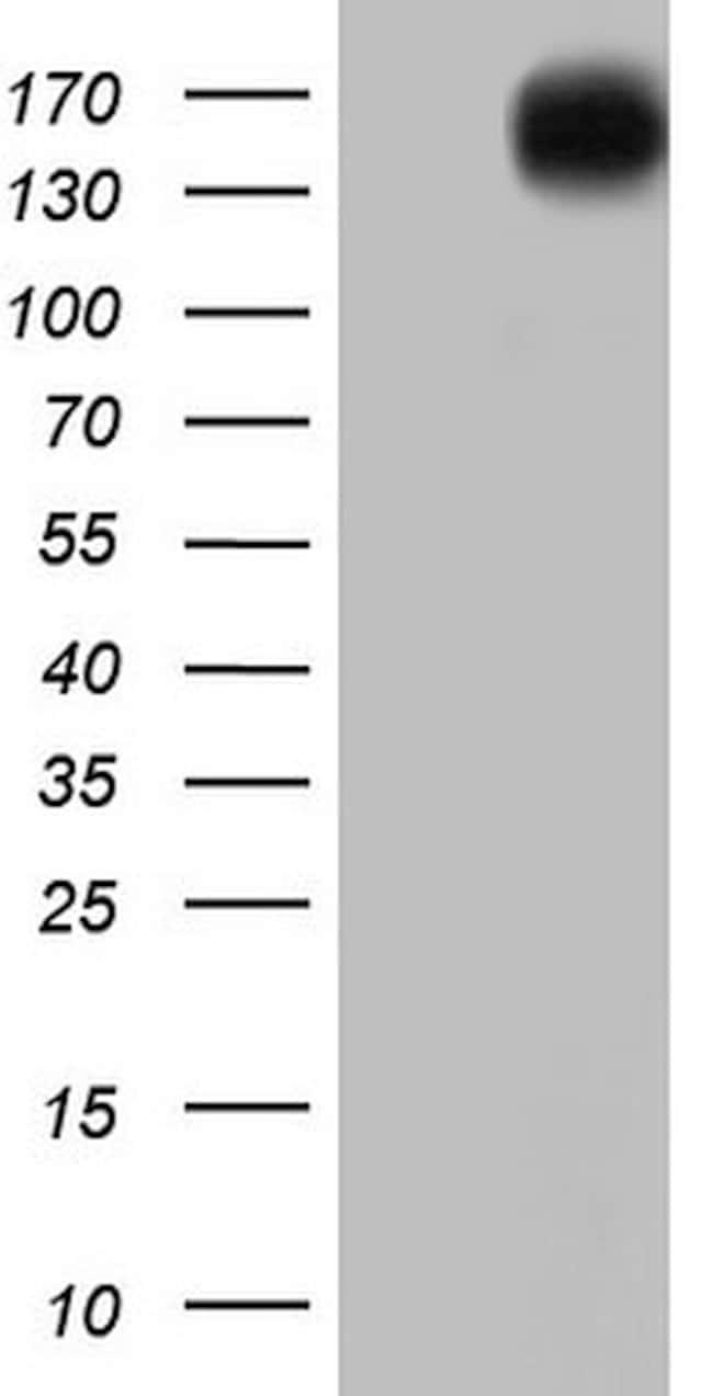 ERBB4 Mouse anti-Human, Clone: OTI3A10, lyophilized, TrueMAB  100 µg;