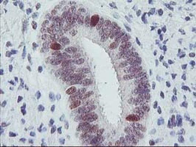 ERCC1 Mouse anti-Human, Clone: OTI1C6, liquid, TrueMAB  100 µL; Unconjugated