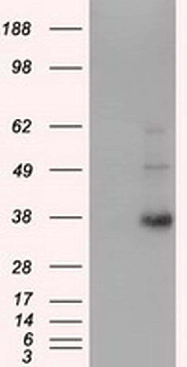 ERCC1 Mouse anti-Human, Clone: OTI2D8, liquid, TrueMAB  100 µL; Unconjugated