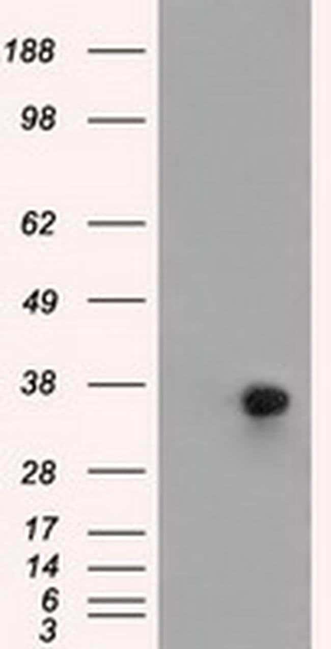 ERCC1 Mouse anti-Human, Clone: OTI2E11, liquid, TrueMAB  100 µL; Unconjugated