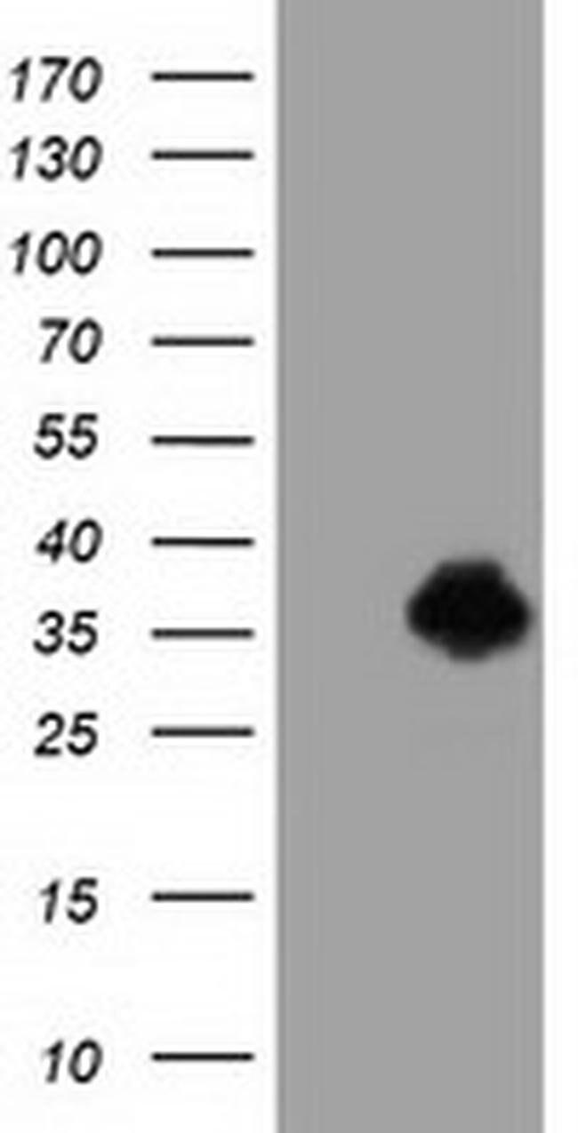ERCC1 Mouse anti-Human, Clone: OTI3F6, liquid, TrueMAB  100 µL; Unconjugated