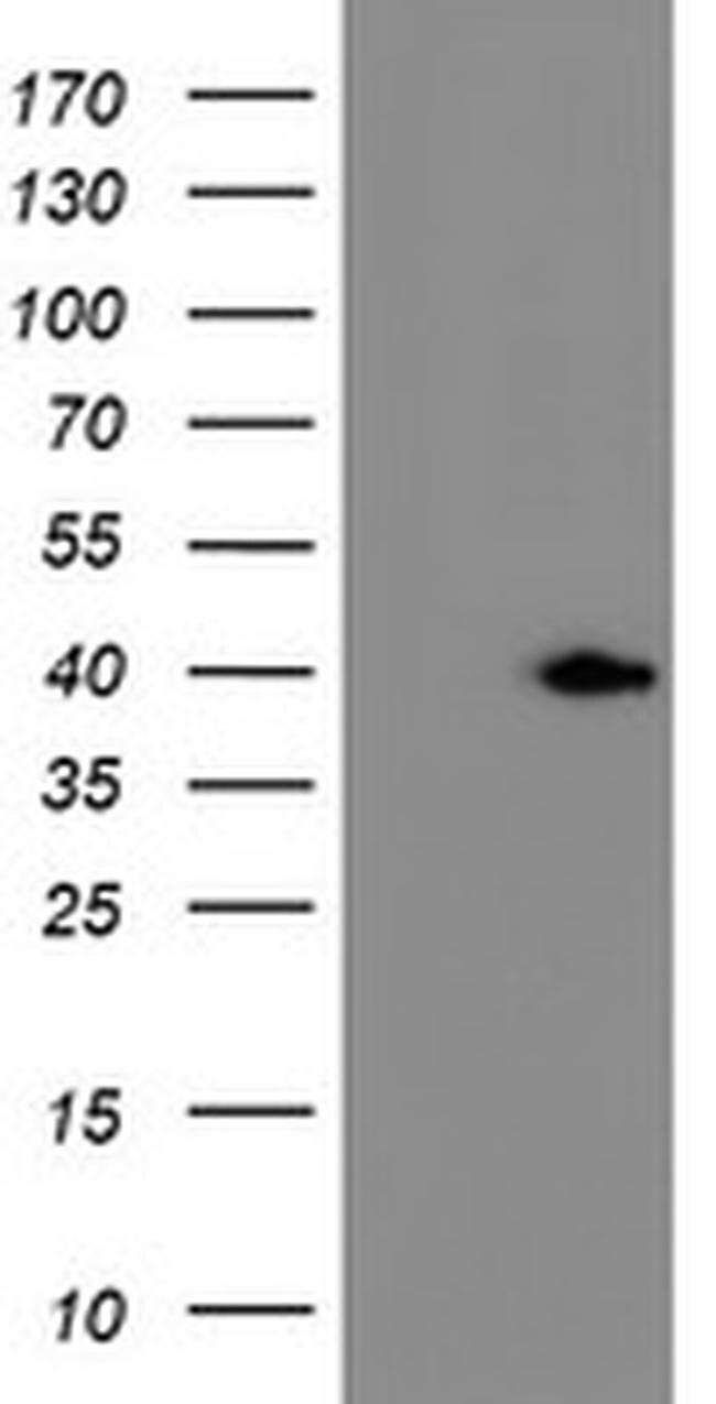 ERCC1 Mouse anti-Human, Clone: OTI24F2, liquid, TrueMAB  100 µL; Unconjugated