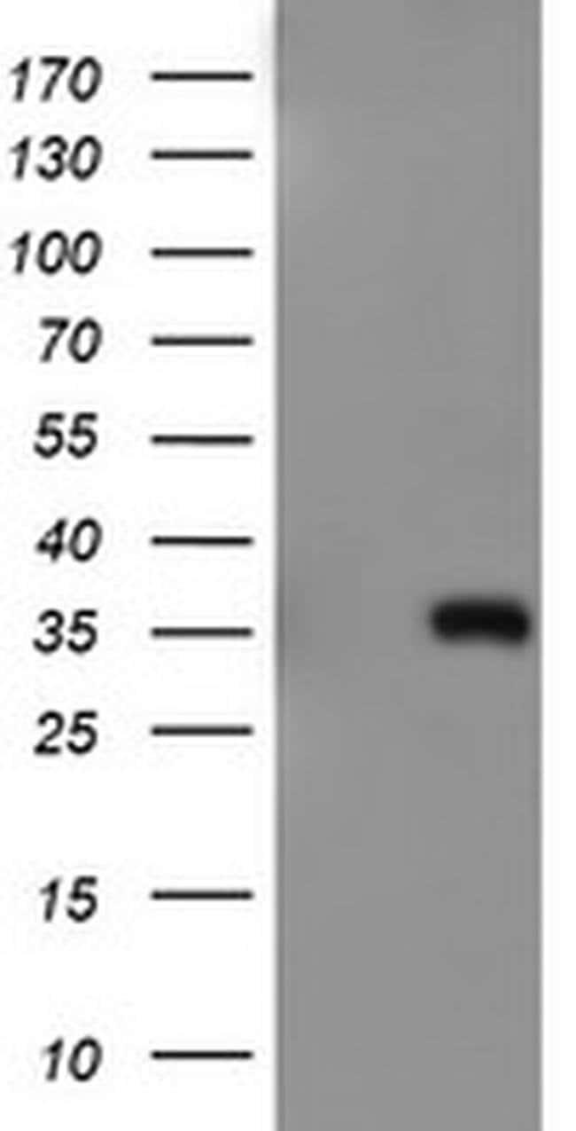 ERCC1 Mouse anti-Human, Clone: OTI2A8, liquid, TrueMAB  100 µL; Unconjugated