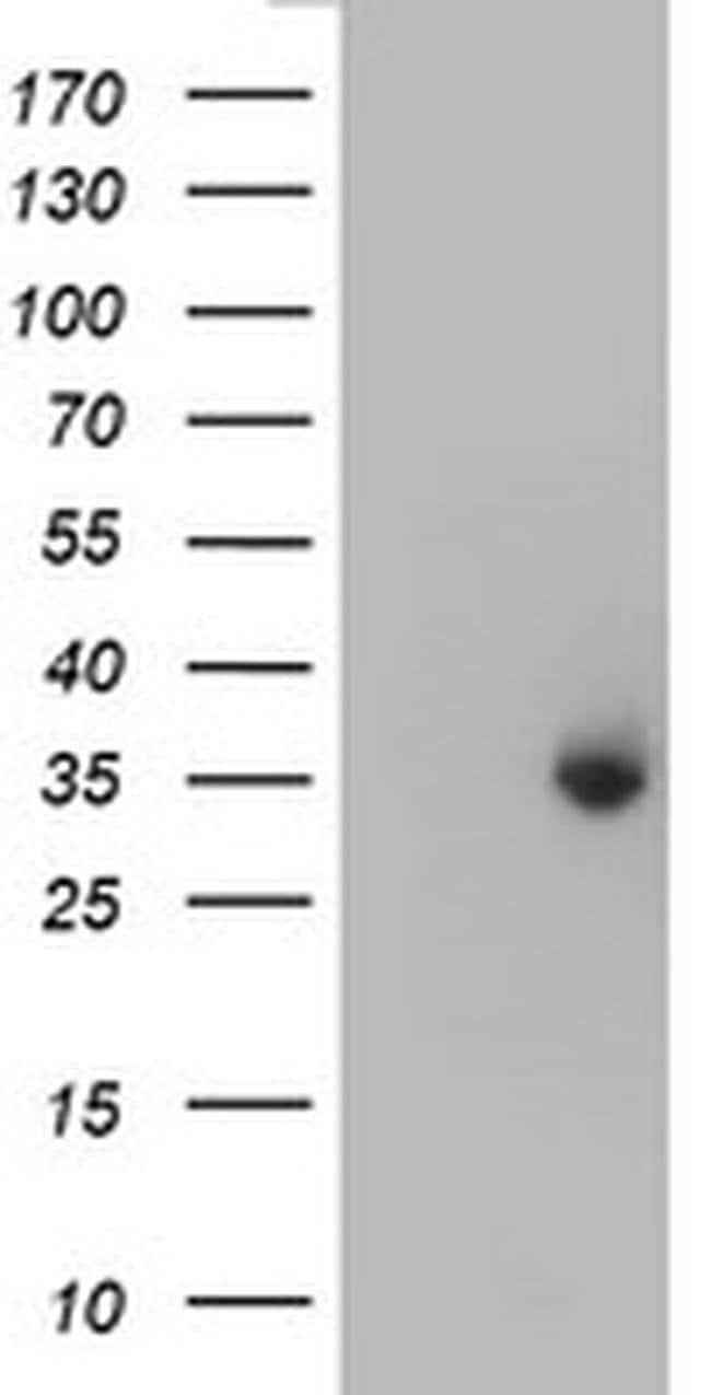 ERCC1 Mouse anti-Human, Clone: OTI5E6, liquid, TrueMAB  100 µL; Unconjugated